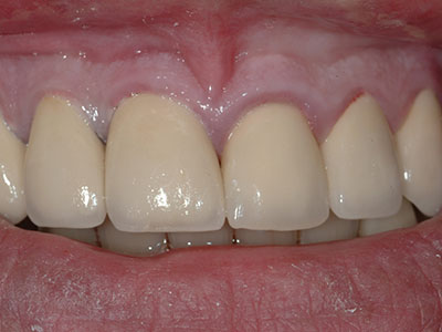 After Full Anterior Crowns by Dr. Brian Alder