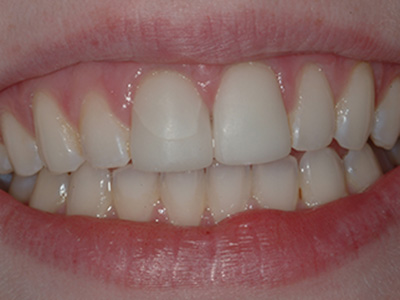 Before Replacement of a Fractured Cerec Crown by Dr. Brian Alder