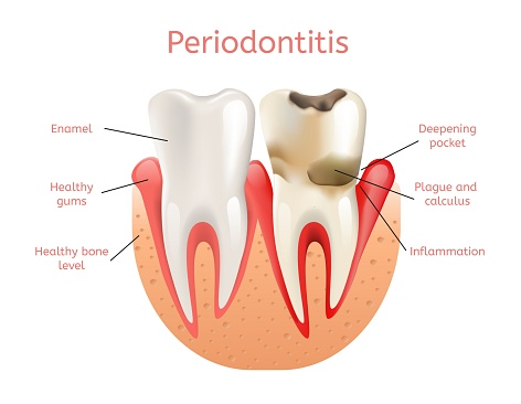Diagram of teeth with gum disease or periodontitus compared to healthy gums