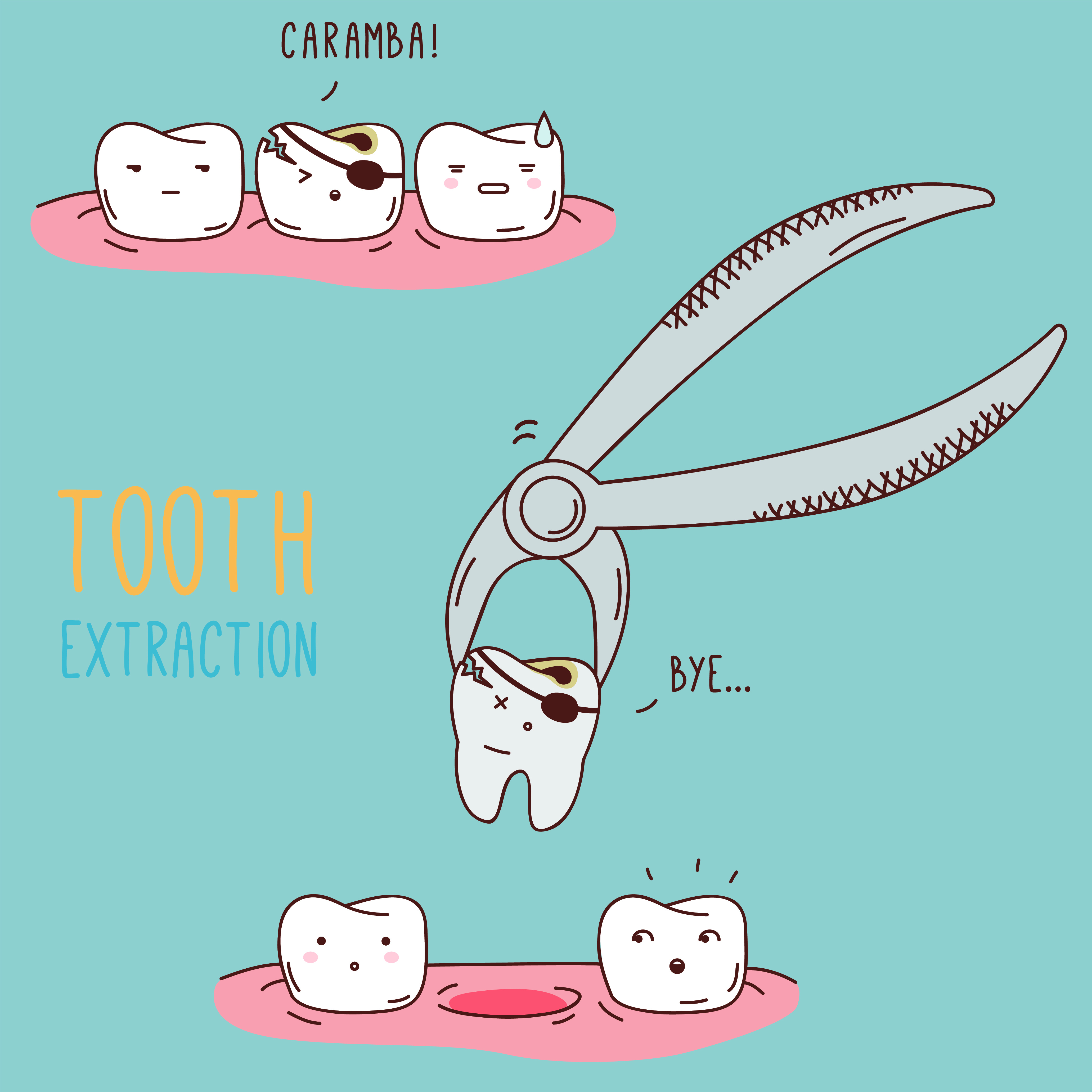 Comical drawing of a tooth being extracted - Alder Dental, Vancouver WA